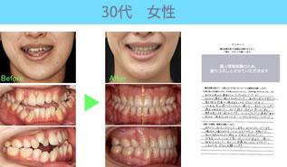 川村矯正歯科の患者さまの声No15
