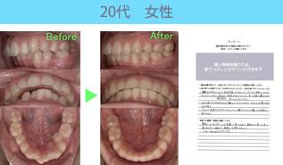 川村矯正歯科の患者さまの声No16