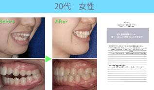 川村矯正歯科の患者さまの声No17