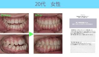 川村矯正歯科の患者さまの声No18