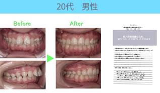川村矯正歯科の患者さまの声No19