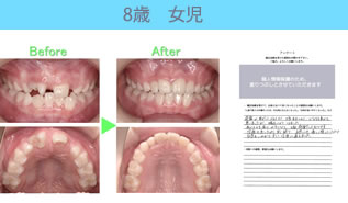川村矯正歯科の患者さまの声No20