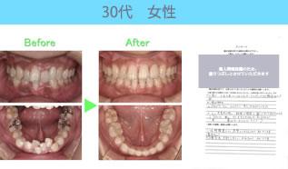 川村矯正歯科の患者さまの声No22